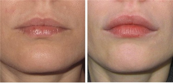 как убрать постоянный запах изо рта