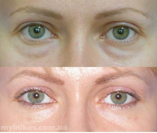 Казань третий глаз блефаропластика