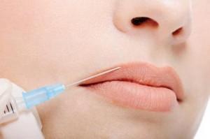 мезотерапия на губах